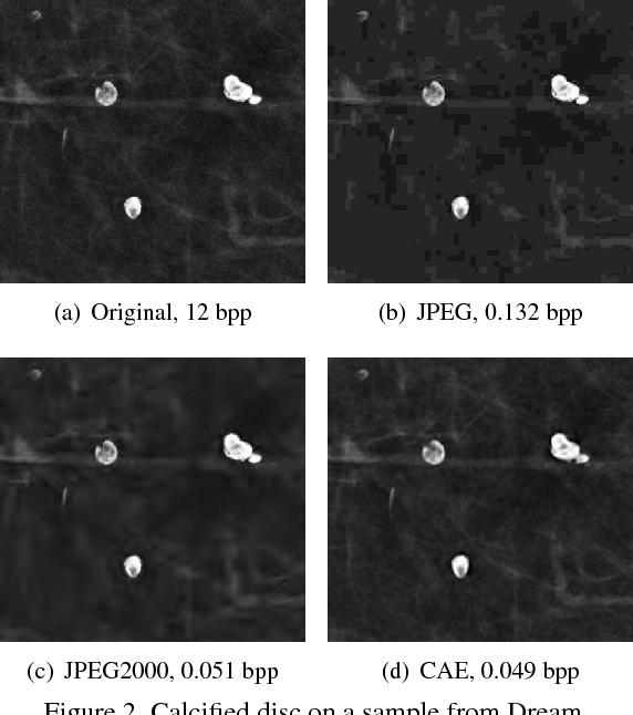 Figure 2 for Fully Convolutional Model for Variable Bit Length and Lossy High Density Compression of Mammograms