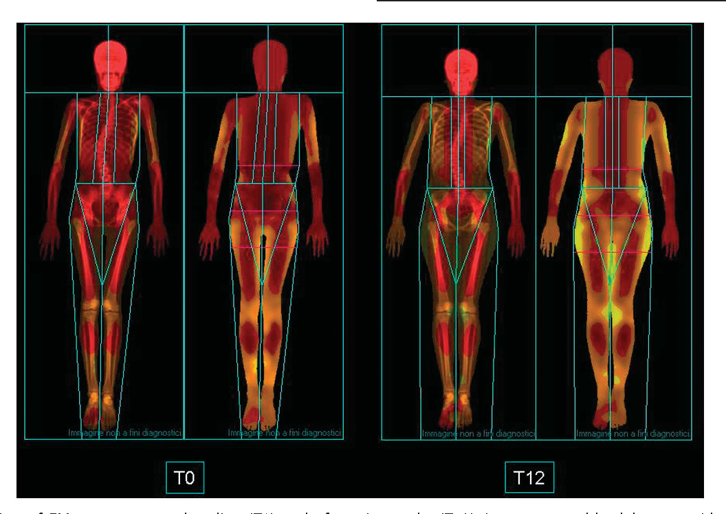 Follow Up Of Bone Mineral Density And Body Composition In