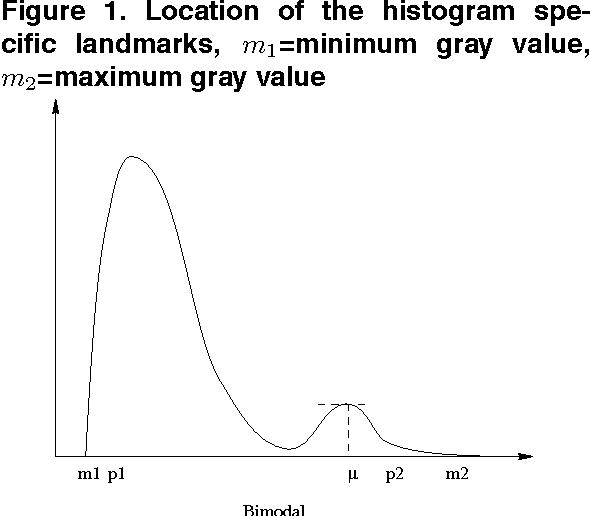 Figure 1 for Multiresolution Elastic Medical Image Registration in Standard Intensity Scale