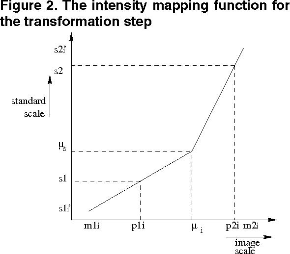 Figure 3 for Multiresolution Elastic Medical Image Registration in Standard Intensity Scale