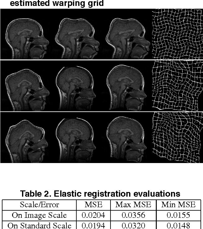 Figure 4 for Multiresolution Elastic Medical Image Registration in Standard Intensity Scale