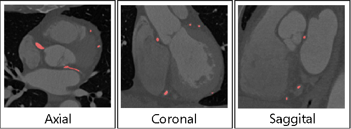 Figure 1 for Multi-Resolution 3D Convolutional Neural Networks for Automatic Coronary Centerline Extraction in Cardiac CT Angiography Scans