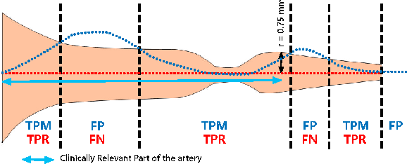 Figure 2 for Multi-Resolution 3D Convolutional Neural Networks for Automatic Coronary Centerline Extraction in Cardiac CT Angiography Scans