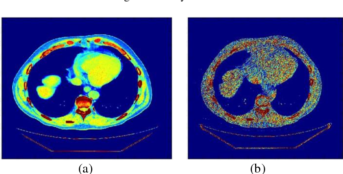 Figure 4 for Blind Analysis of CT Image Noise Using Residual Denoised Images