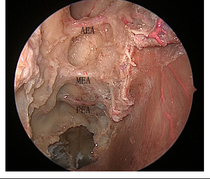 Figure 1 From Endoscopic Anatomy Of The Middle Ethmoidal Artery