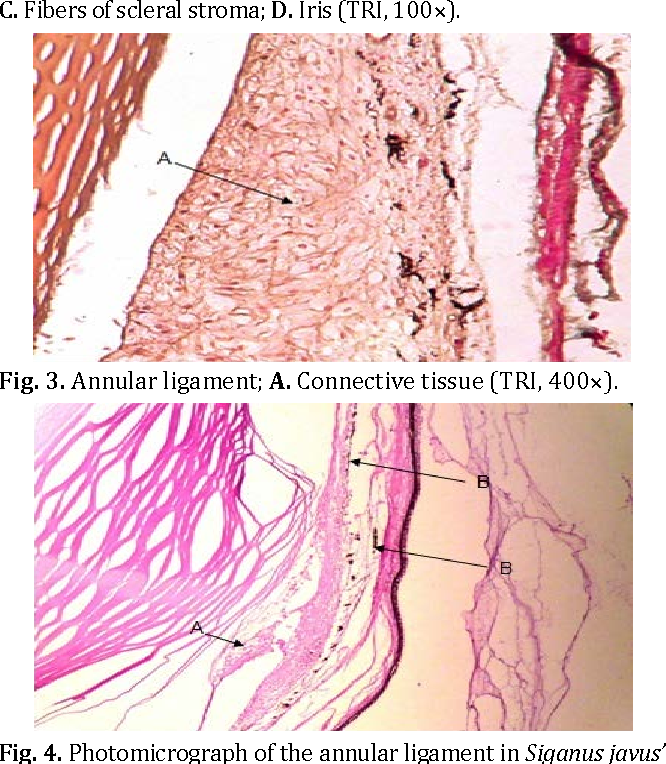 Histological study of the annular ligament in the rabbitfish eye ...