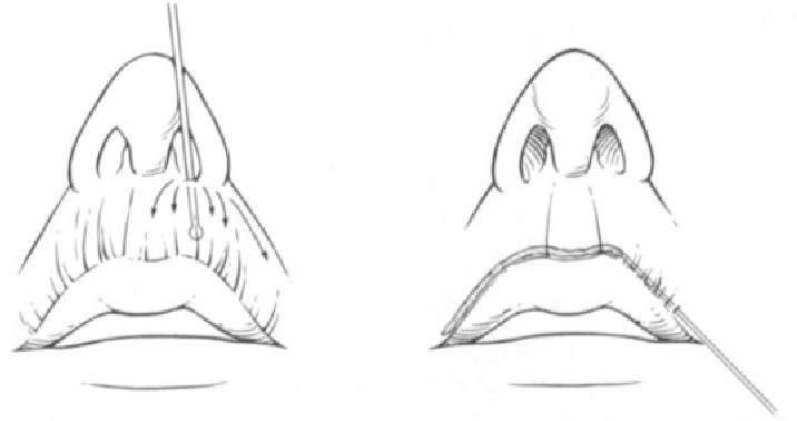 figure 6-18