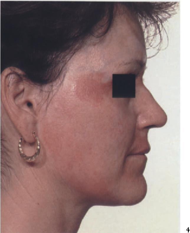figure 39-45