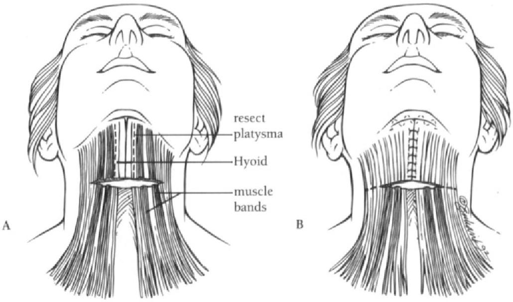 figure 9-7