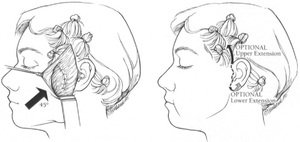 figure 11-4