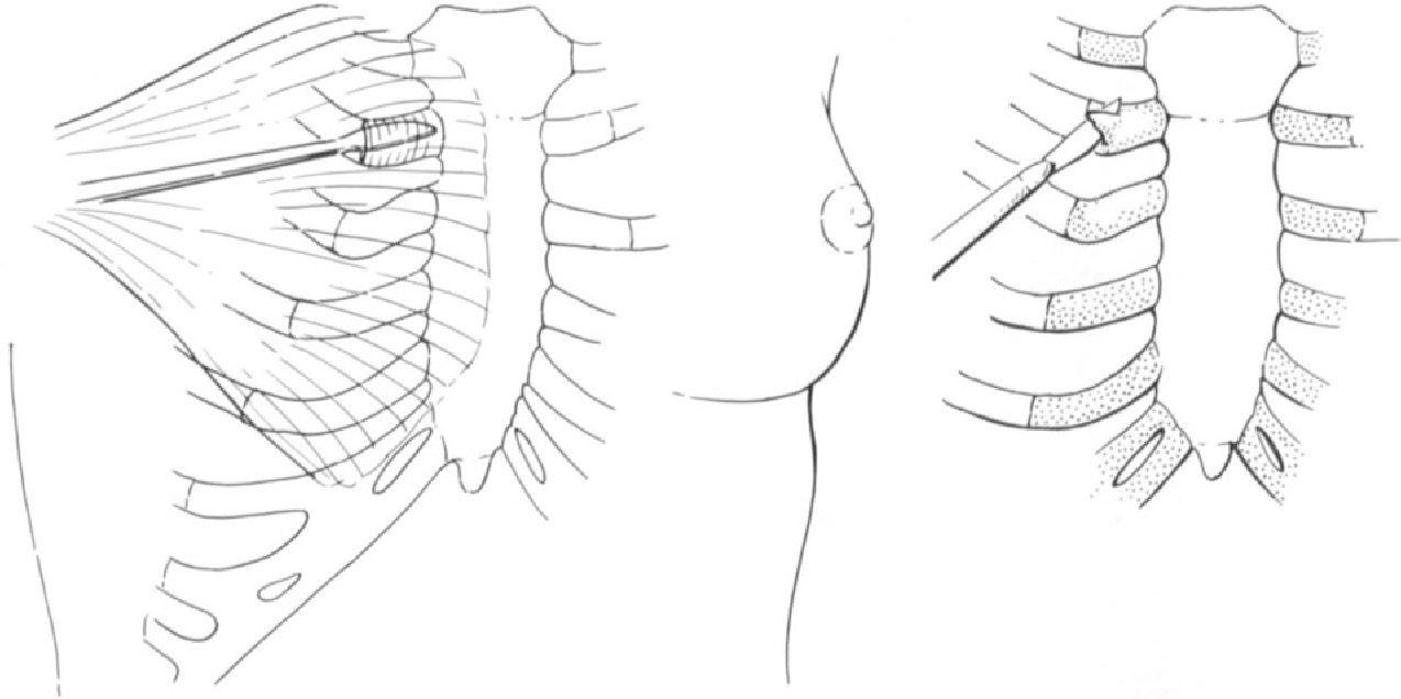 figure 12-8