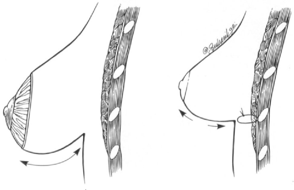 figure 13-9