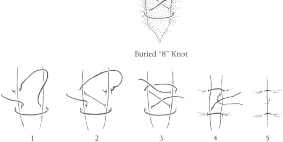 figure 14-6