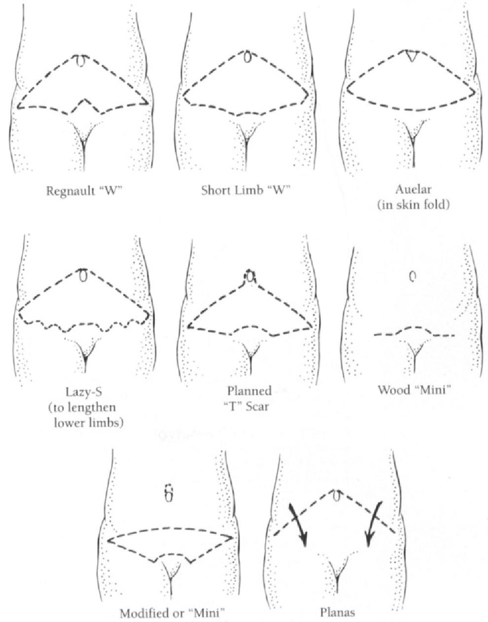 figure 14-8