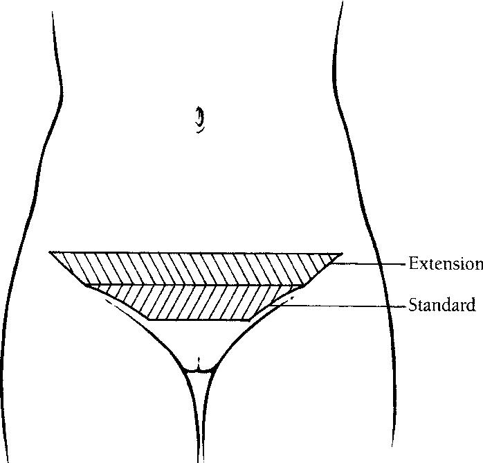 figure 14-9