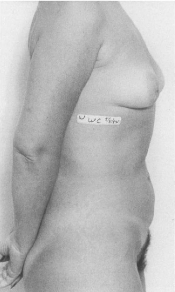 figure 14-11