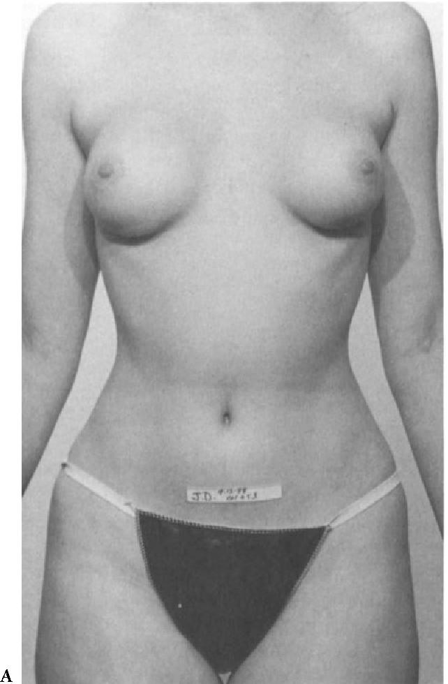 figure 15-3