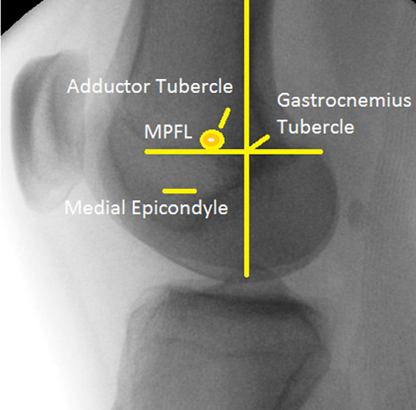 Figure 4 From Medial Patellofemoral Ligament Reconstruction