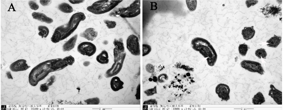 Figure 9. Transmission electron micrograph of the cells cultured without selenite (A) and exposed to 1.0 m mol/L selenite (B).