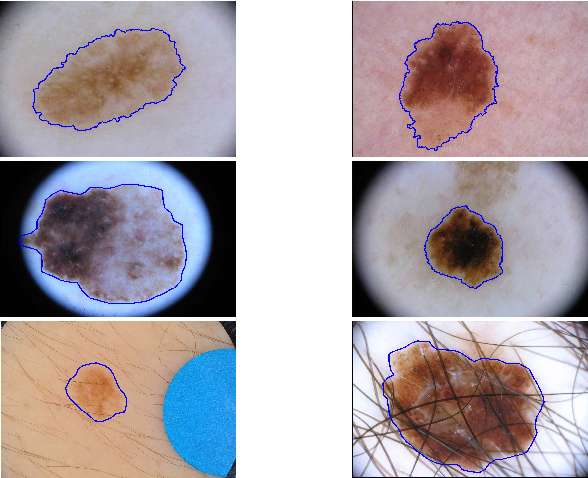 Figure 1 for Global and Local Information Based Deep Network for Skin Lesion Segmentation