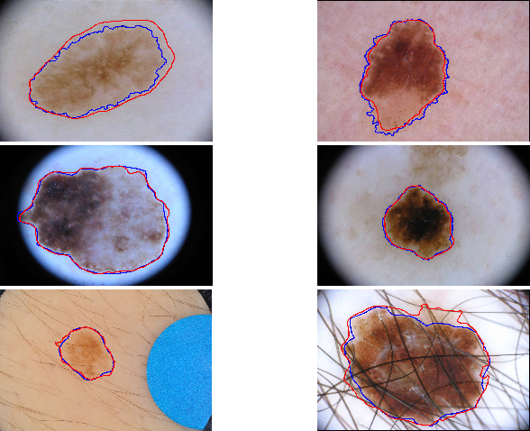 Figure 3 for Global and Local Information Based Deep Network for Skin Lesion Segmentation