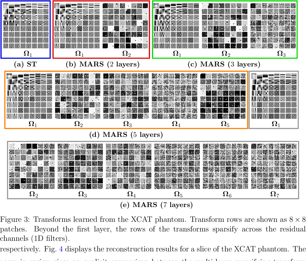 Figure 4 for Multi-layer Residual Sparsifying Transform (MARS) Model for Low-dose CT Image Reconstruction