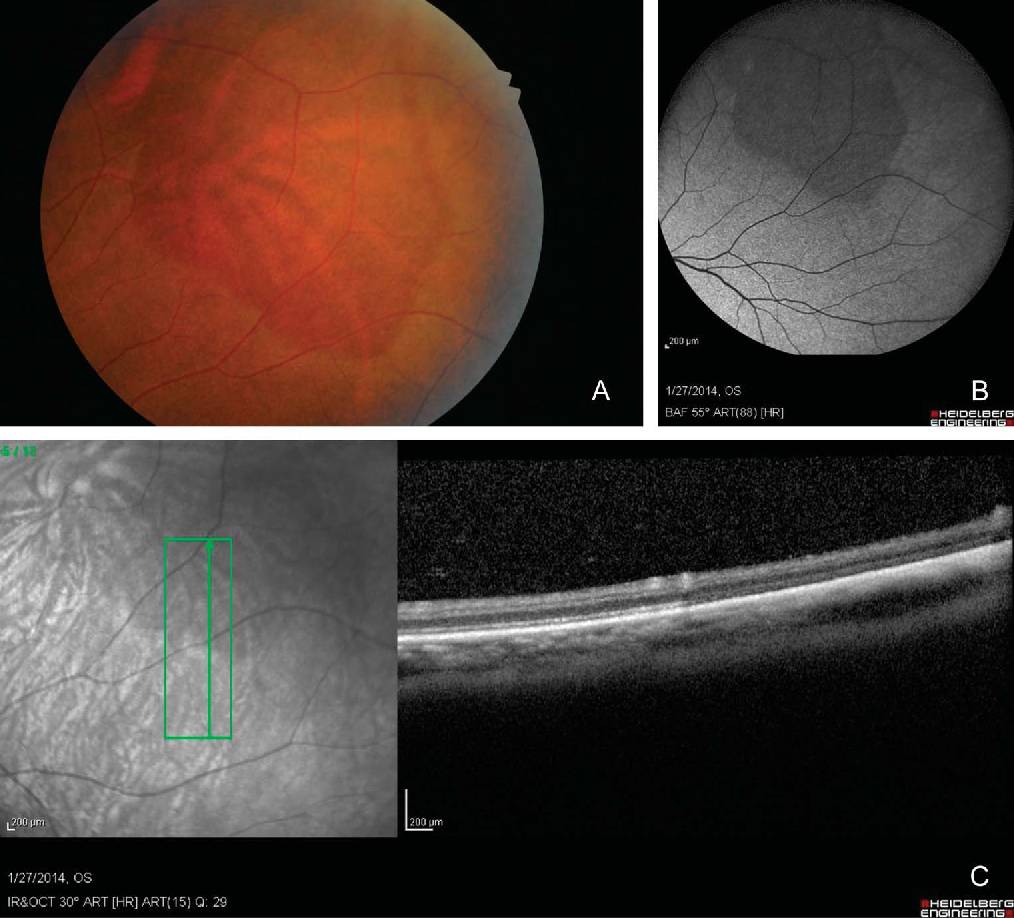 Multimodal Imaging Of White And Dark Without Pressure Fundus Lesions