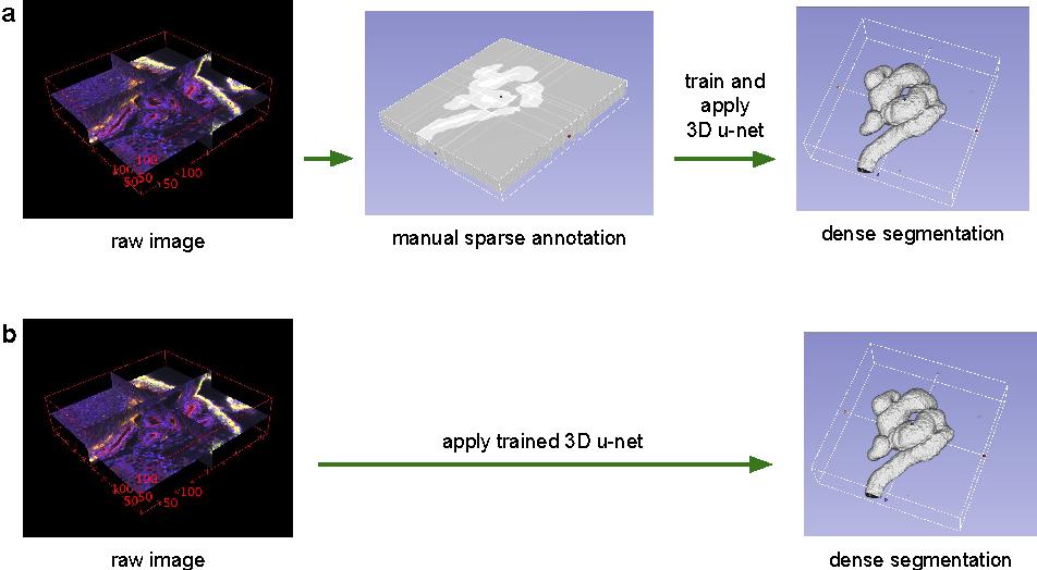 Figure 1 for 3D U-Net: Learning Dense Volumetric Segmentation from Sparse Annotation