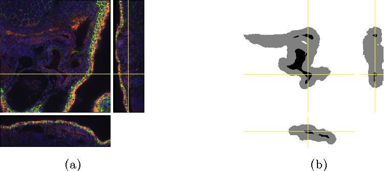Figure 4 for 3D U-Net: Learning Dense Volumetric Segmentation from Sparse Annotation