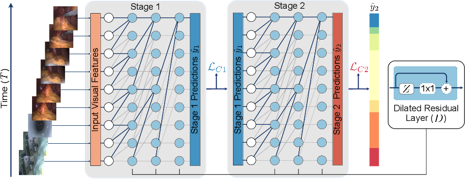 Figure 1 for TeCNO: Surgical Phase Recognition with Multi-Stage Temporal Convolutional Networks