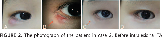 Eyelid Fat Atrophy and Depigmentation After an Intralesional