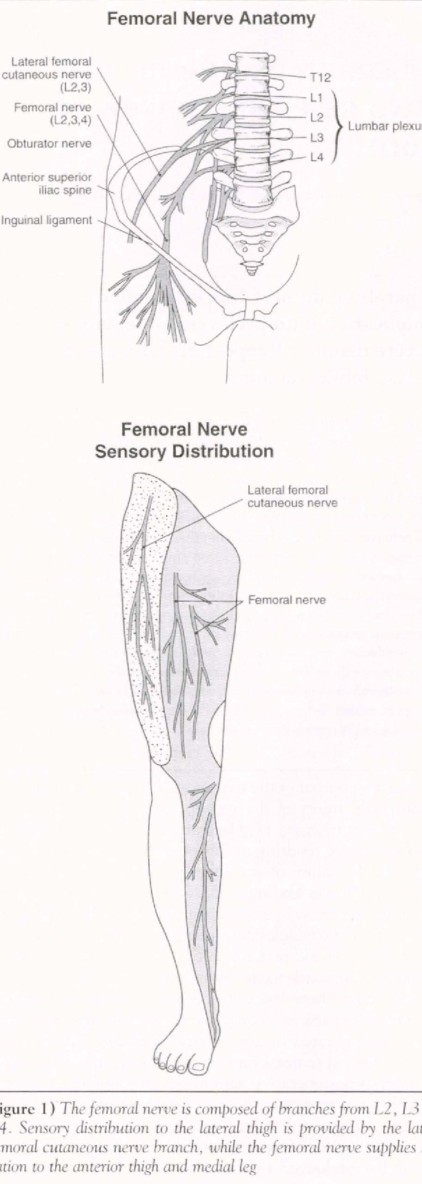 femoral nerve compression - Semantic Scholar