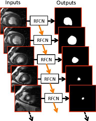 Figure 1 for Recurrent Fully Convolutional Neural Networks for Multi-slice MRI Cardiac Segmentation