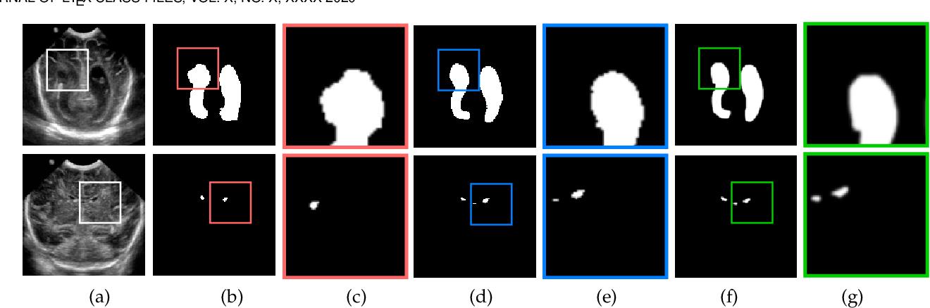 Figure 3 for KiU-Net: Overcomplete Convolutional Architectures for Biomedical Image and Volumetric Segmentation
