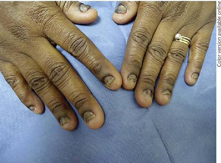 Severe Onychodystrophy due to Allergic Contact Dermatitis from ...