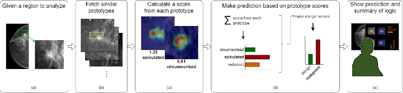 Figure 1 for Interpretable Mammographic Image Classification using Cased-Based Reasoning and Deep Learning