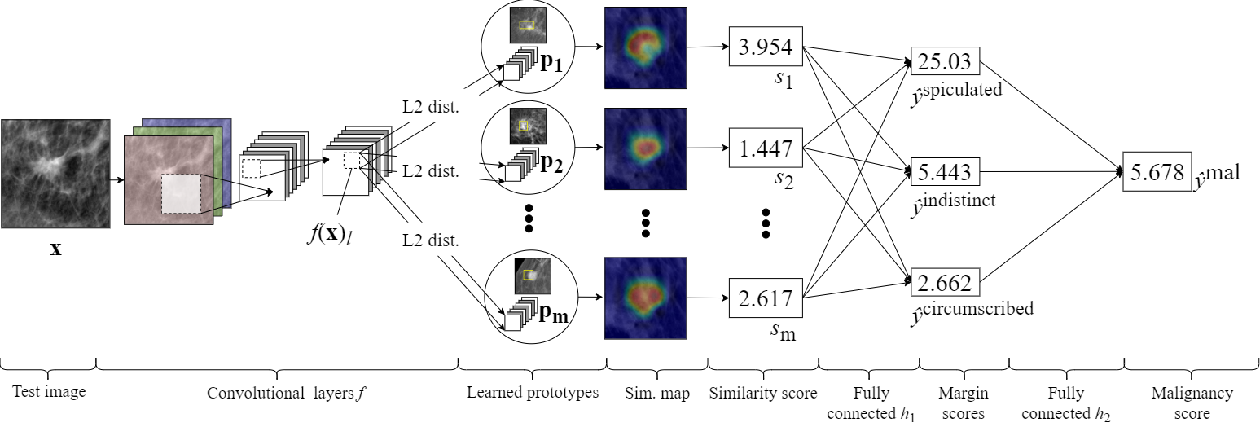 Figure 3 for Interpretable Mammographic Image Classification using Cased-Based Reasoning and Deep Learning