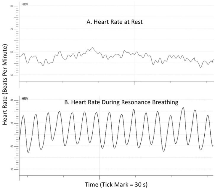 resting heart rate research paper Research papers biology experiment on heart rate - the effect of music on heart rate aim: to investigate if listeners to music can affect their heart rate in any possible way method: firstly we lay them on the back to get the resting heart rate and we test the people's heart rates before they listen.