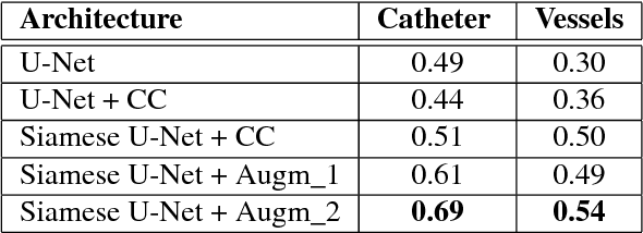 Figure 4 for Deep Segmentation and Registration in X-Ray Angiography Video