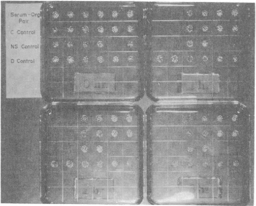 FIG. 2. Sample results of rapid bactericidal assay. Plates are stamped at 0, 1, 2, and 3 h as indicated. Contents of wells correspond to Fig. 1.