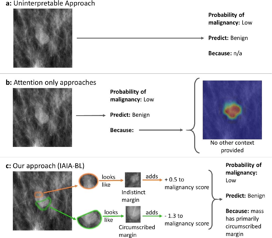 Figure 1 for IAIA-BL: A Case-based Interpretable Deep Learning Model for Classification of Mass Lesions in Digital Mammography