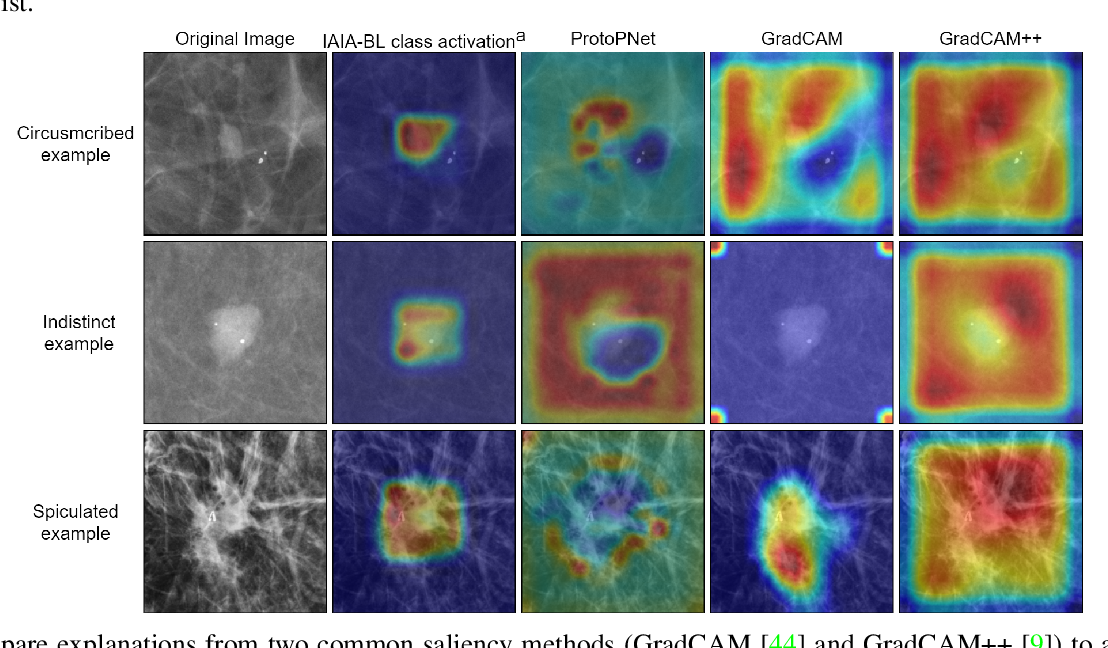 Figure 3 for IAIA-BL: A Case-based Interpretable Deep Learning Model for Classification of Mass Lesions in Digital Mammography