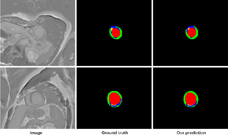 Figure 4 for Cascaded Convolutional Neural Network for Automatic Myocardial Infarction Segmentation from Delayed-Enhancement Cardiac MRI