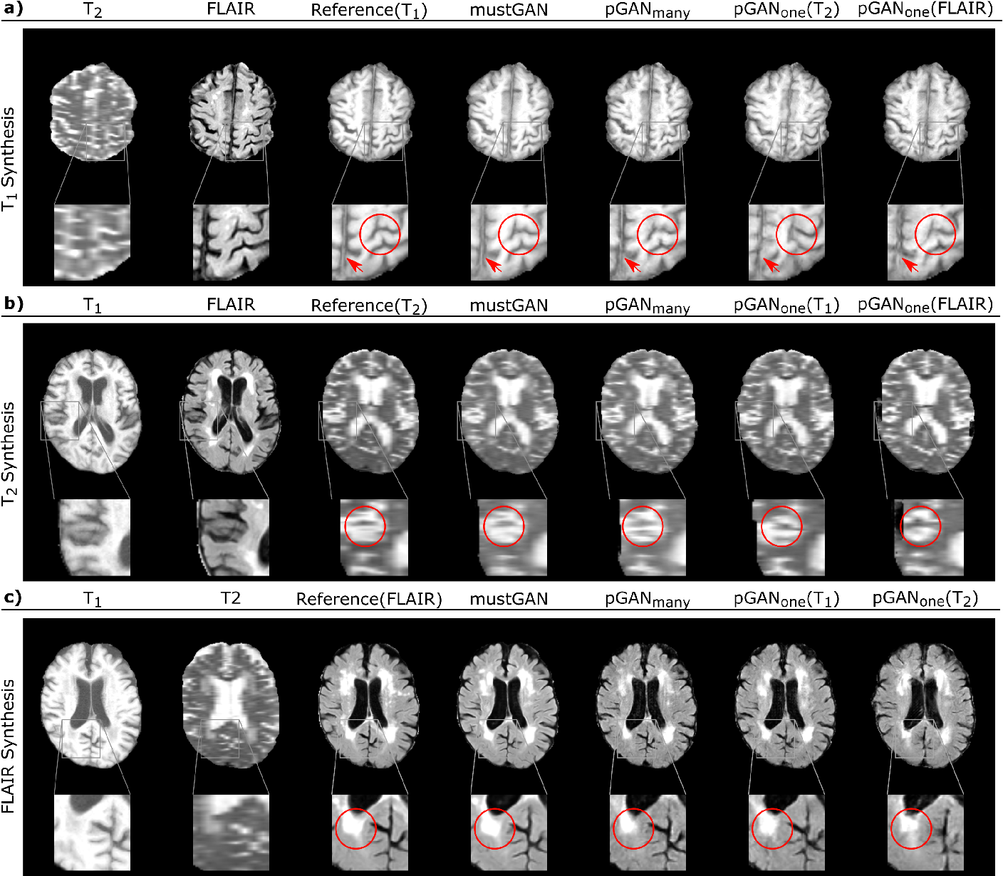 Figure 3 for mustGAN: Multi-Stream Generative Adversarial Networks for MR Image Synthesis