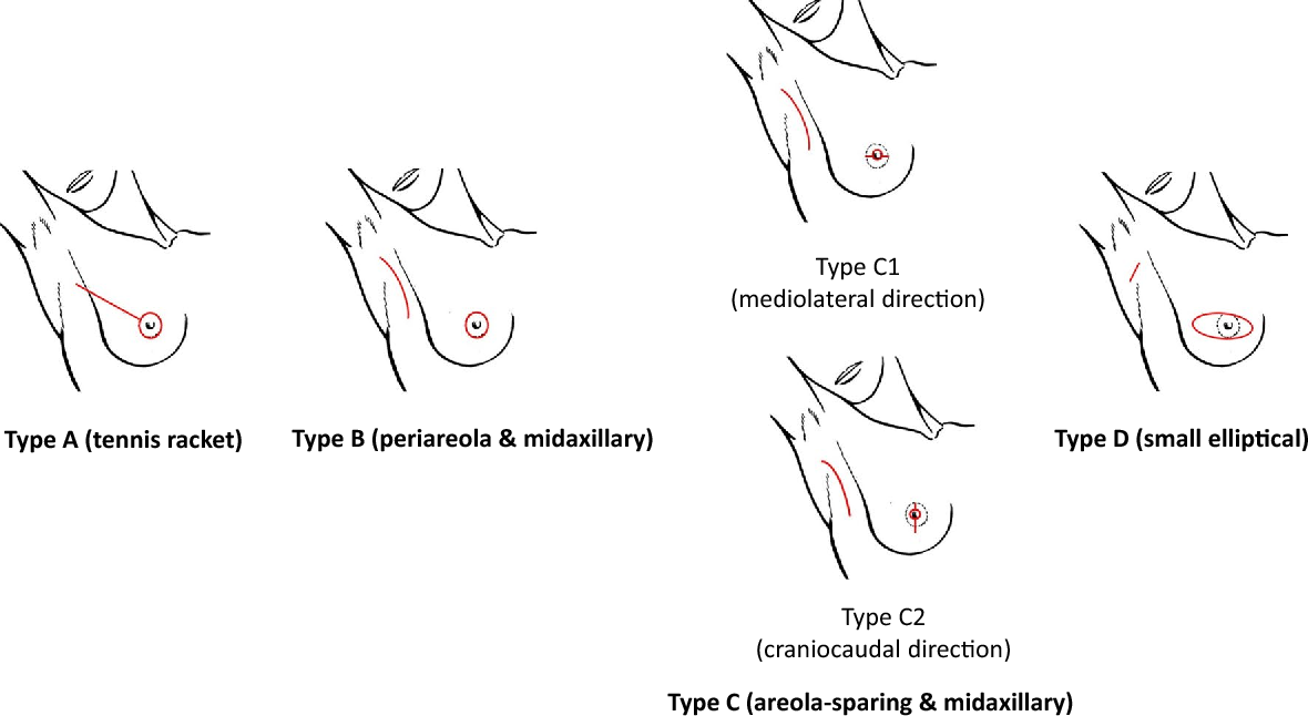 Preservation of the nipple–areola complex in skin-sparing mastectomy ...