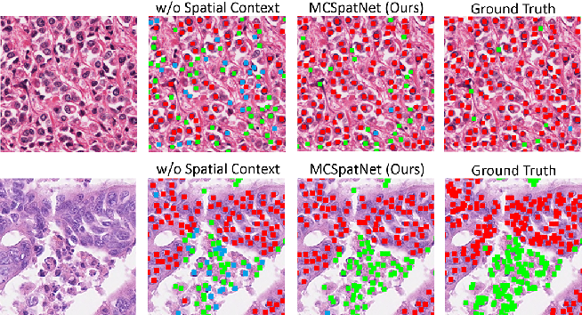 Figure 1 for Multi-Class Cell Detection Using Spatial Context Representation