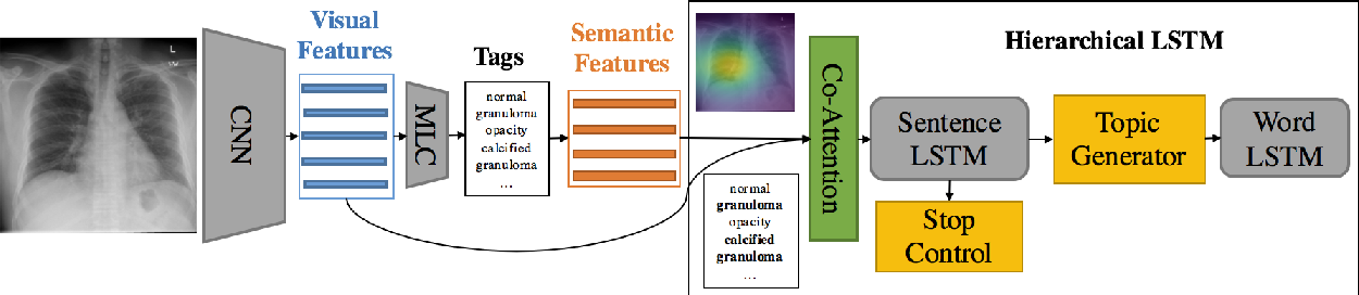 Figure 3 for On the Automatic Generation of Medical Imaging Reports