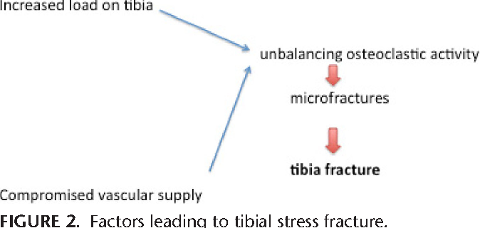Tibial stress fracture after fibular graft harvesting: an