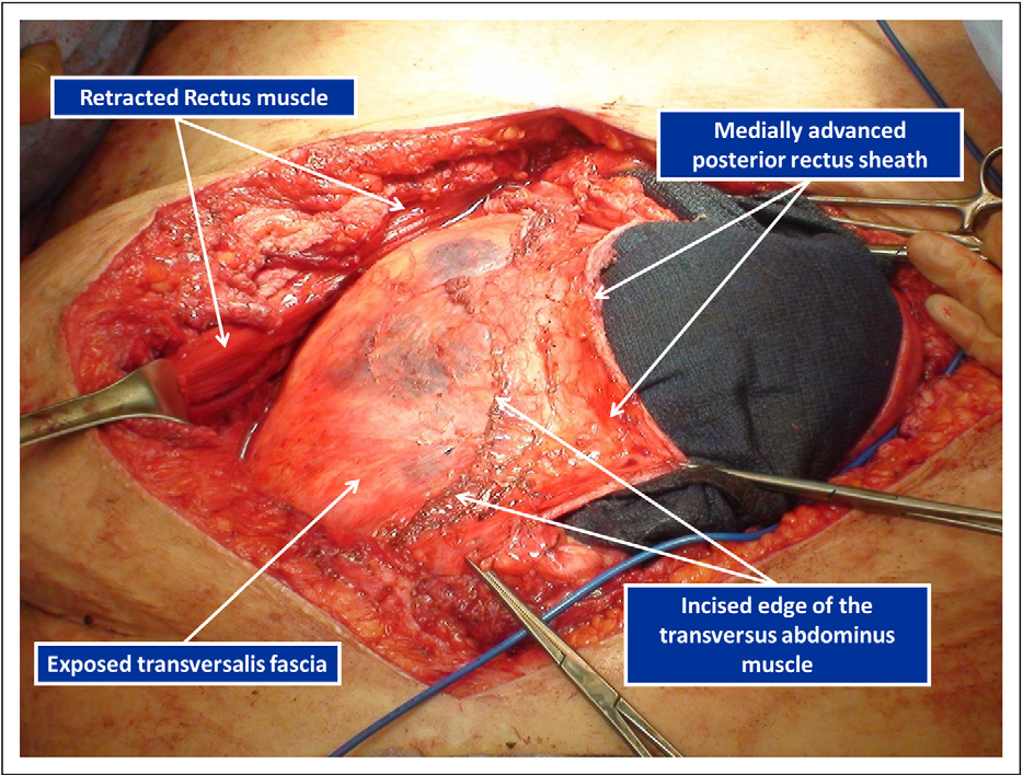 Transversus abdominis muscle release: a novel approach to posterior ...