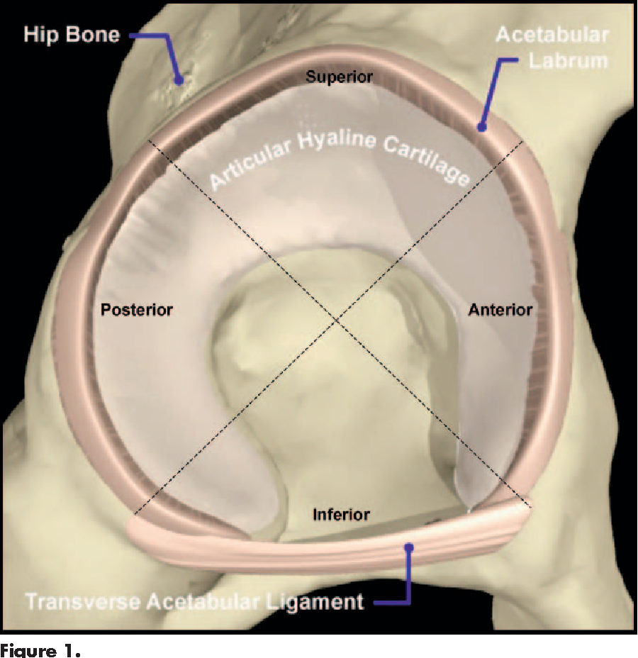 Figure 1 from Acetabular labral tears. - Semantic Scholar